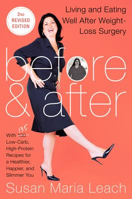 Before & After By Leach, Susan Maria